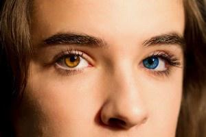 Гетерохромия - разный цвет глаз (фото человека)