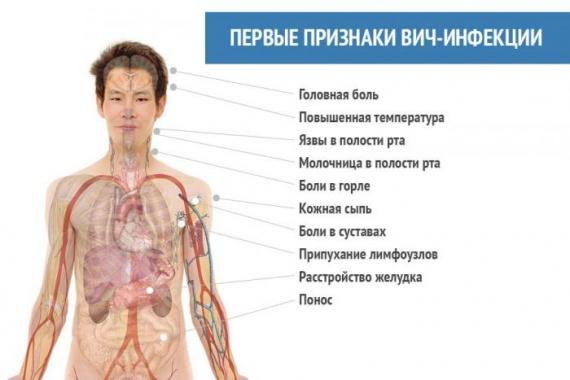Симптомы ВИЧ и СПИД
