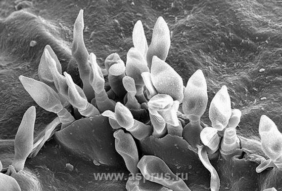 Фавус под микроскопом