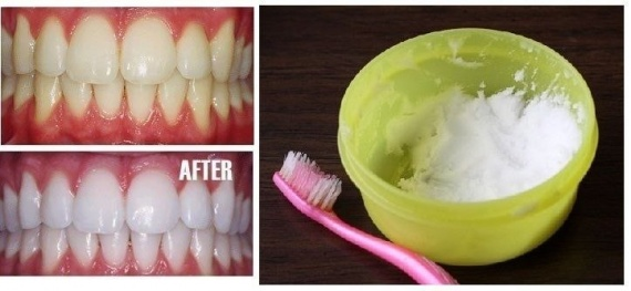 Сода и лимон для отбеливания зубов