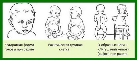 Рахит у ребенка