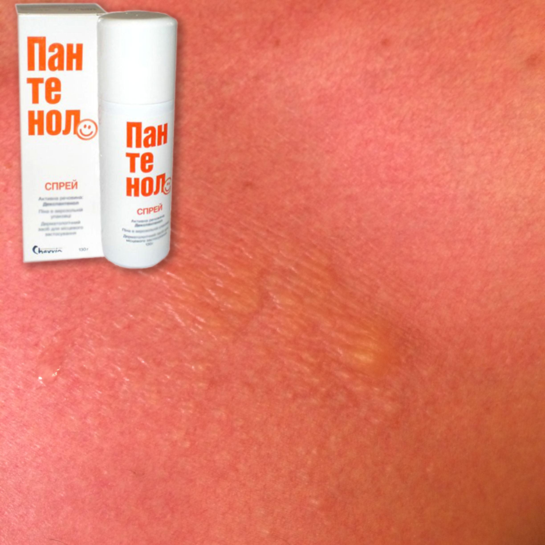 Чём намазать кожу после солнечного ожога в  529
